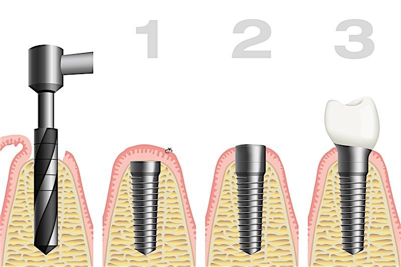 Single Tooth Dental Implants Process In Birmingham Alabama