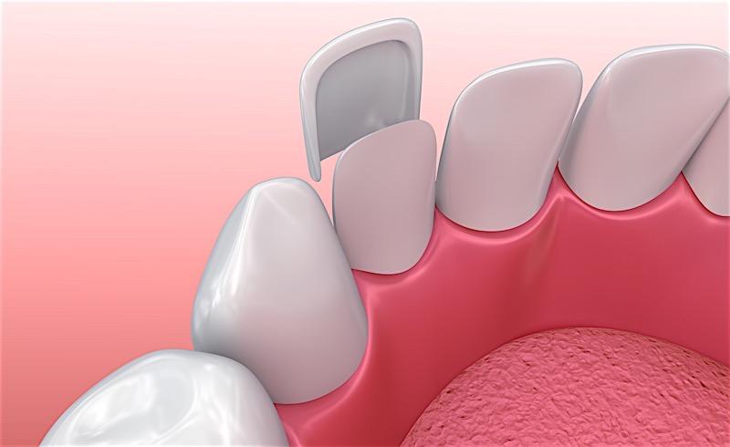 Composite Dental Veneers Installation Process in Birmingham Alabama