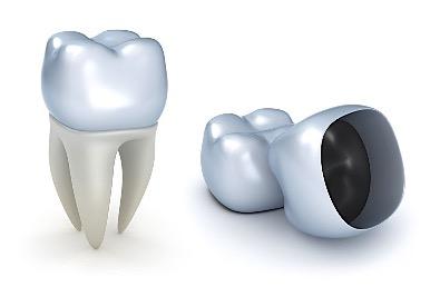 Dental Crowns Placed In Birmingham Alabama