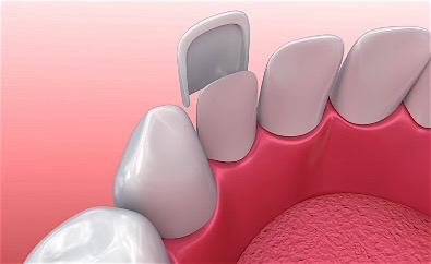 Porcelain Dental Veneers Placement Procedure in Birmingham Alabama